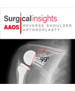 Surgical Insights: Reverse Shoulder Arthroplasty