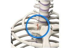 Sternoclavicular Joint (SC joint) Disorders